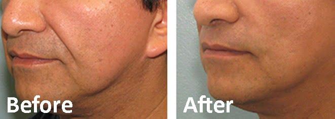 Thread Lift - Aesthetic Medicine Skin Clinic Eskulap